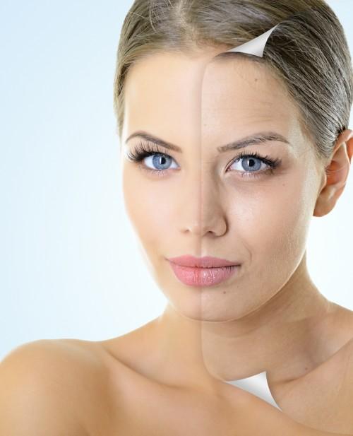 Pixel Laser Skin Resurfacing