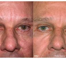 Laser 360 Male Face